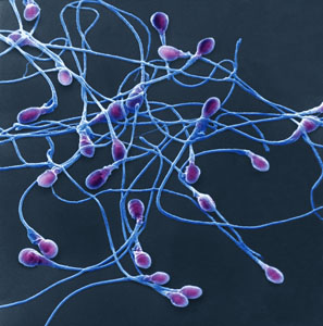 Gates Foundation Suggests Sterilizing Males with Ultrasound