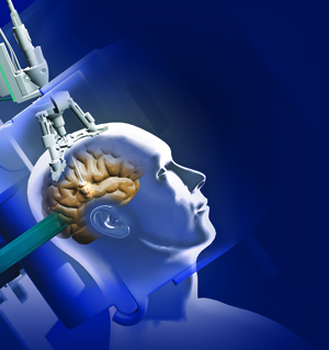 http://www.bnasurg.com/treatments-laser-in-neurosurgery.php