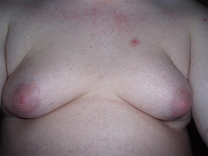 Обычно гинекомастия (доброкачественное увеличение молочной железы у мужчин)